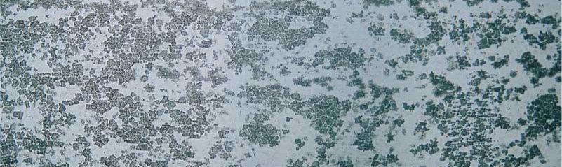 процен на патиниране на титан цинковата ламарина